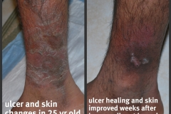 Ulcer-Shag