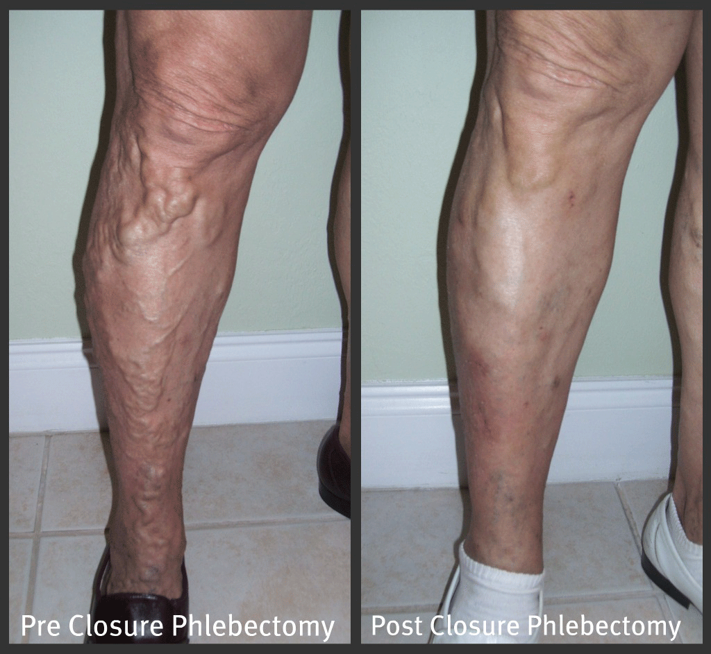 Photo Gallery For Vein Specialists In Fort Myers Bonita