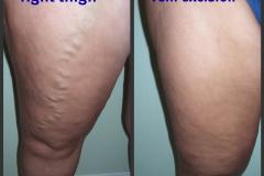varicose-veins-thigh-prepost