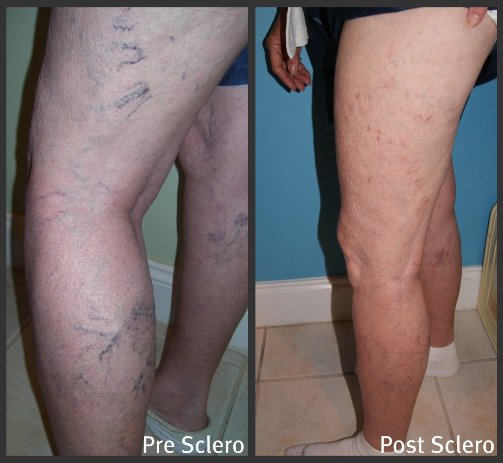 sclerotherapy-01