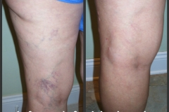 sclerotherapy-06