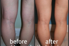 sclerotherapy-11