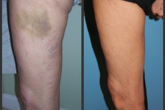 sclerotherapy-14