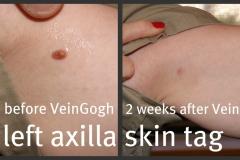 axillary-skin-tag