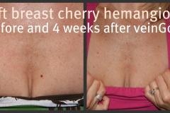 breast-hemangioma