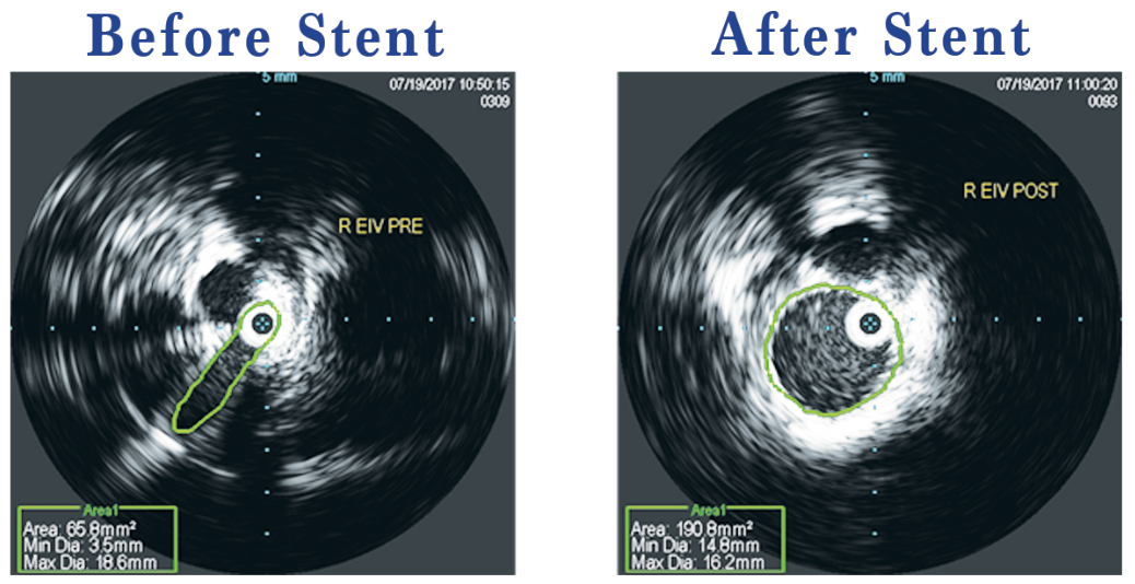 IVUS Stent Placement Before & After
