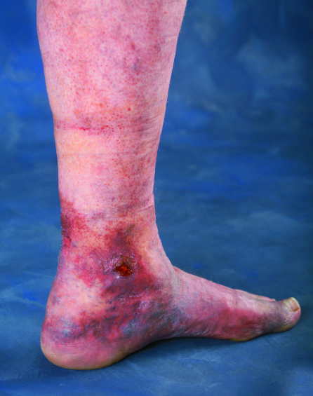 Leg Ulcer