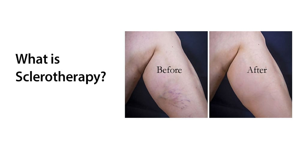 Sclerotherapy Spider Vein Removal