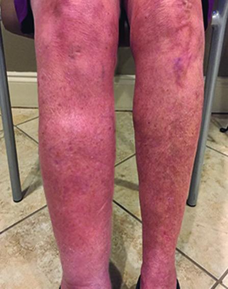 leg-swelling