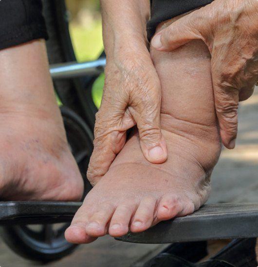 Get Swollen leg relief now with the Vein Specialists