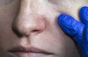broken capillaries around nose