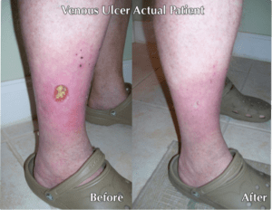 Before and after image of wound care treatements