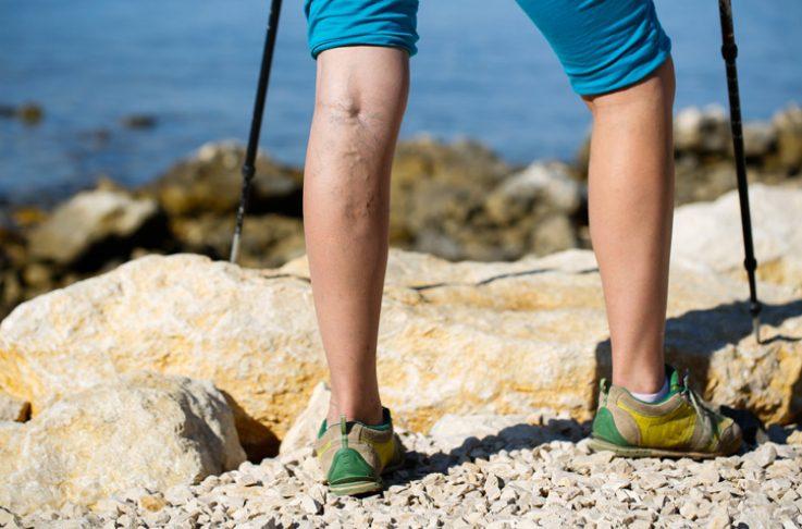 legs on rock face