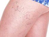 spider veins above knee