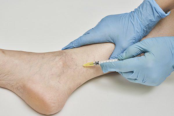 Sclerotherapy procedure in foot veins