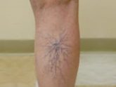 spider veins below knee