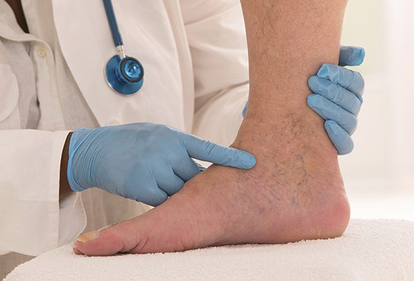 Vein Doctor pointing out foot veins